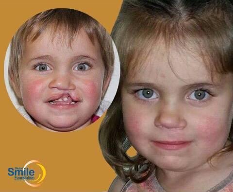 global smile foundation
